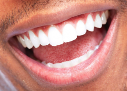 ZOOM! TEETH WHITENING TREATMENT – YOUR BURLINGTON COSMETIC DENTIST EXPLORES THE BENEFITS