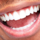 ZOOM! TEETH WHITENING TREATMENT – YOUR BURLINGTON COSMETIC DENTIST EXPLORES THE BENEFITS